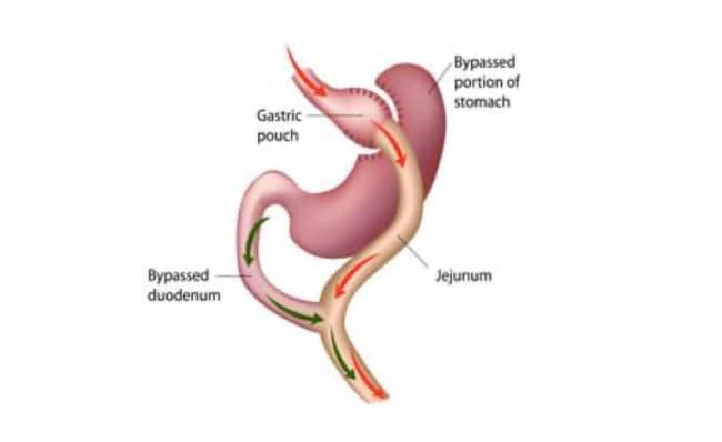 Gastric Bypass Surgery In Huntsville, AL